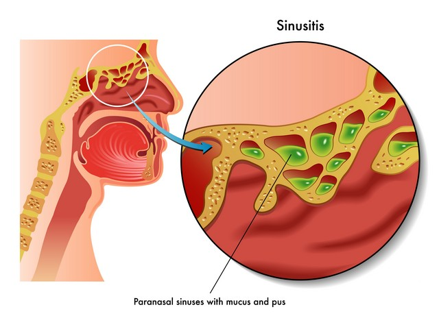 Concluding Thoughts On Mold and Sinusitis!
